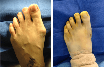 patient feet before and after